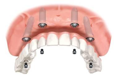 Zubní implantát komplikace
