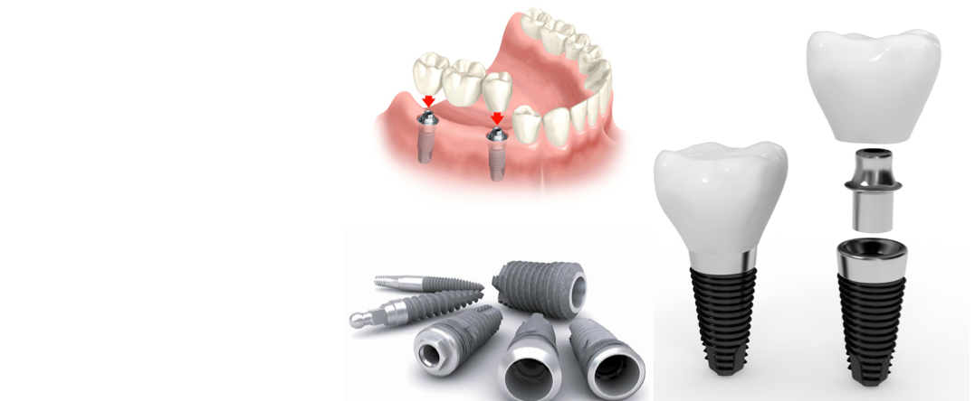 Zubní implantaty