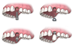 Postup implantace