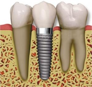 solo implantat